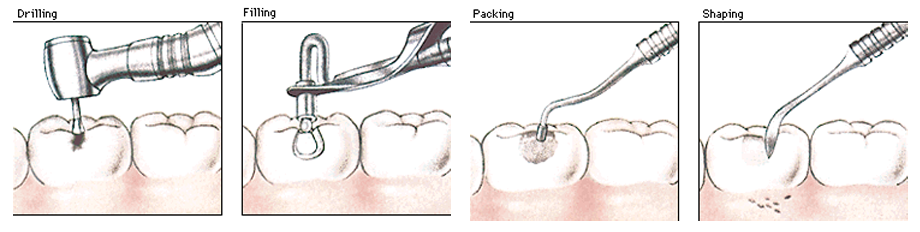 dental cavity treatment procedure