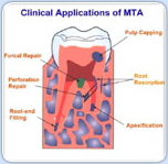 clinical applications of MTA