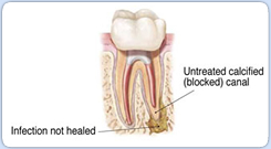 untreated calcified canal