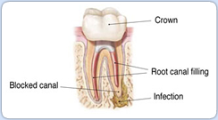 blocked root canal