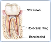 root canal filling