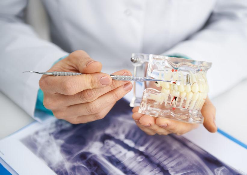 root canal manhattan ny, dental implant nyc, endodontist nyc